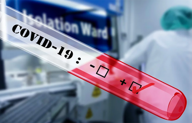 covid coronavirus test termometro